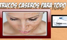 Remedios caseros naturales para las manchas de la edad – Tratamiento de belleza.