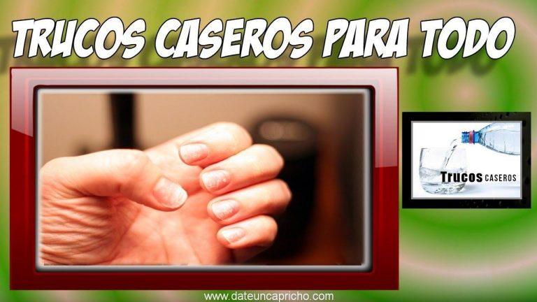 Remedios caseros para tratar las manchas blancas en las uñas – Tratamientos naturales.