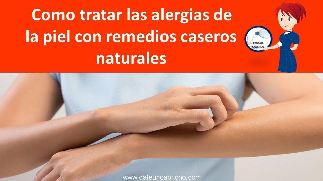 como tratar las alergias de la piel con remedios caseros naturales