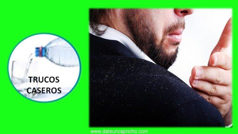 Consejos y trucos caseros para combatir la caspa – Remedios naturales.
