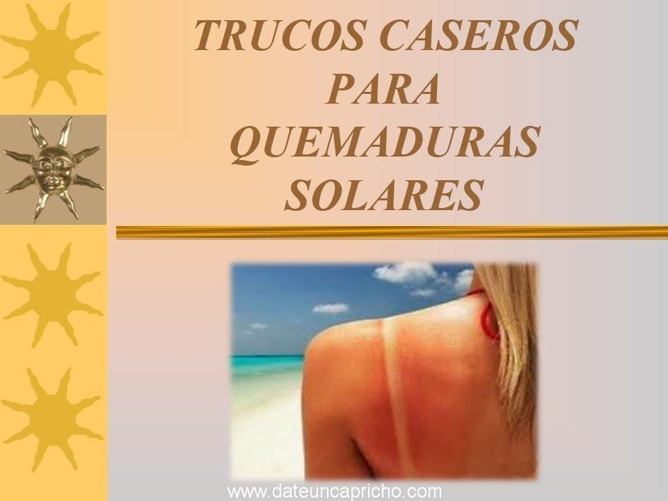 Photo of Remedios caseros y trucos naturales para las quemaduras del sol.