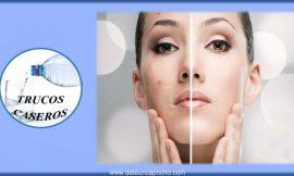 Como eliminar las cicatrices del acne con productos naturales caseros