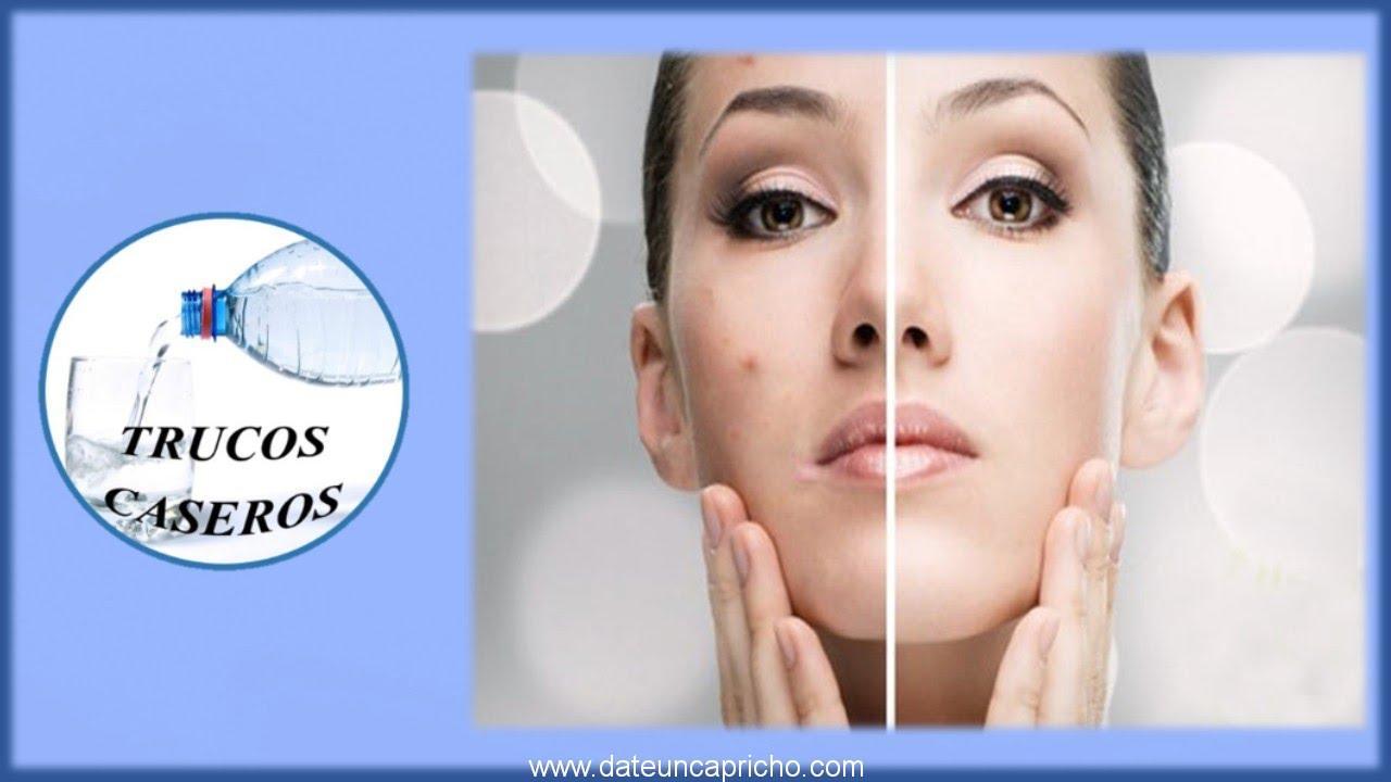 Photo of Como eliminar las cicatrices del acne con productos naturales caseros
