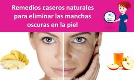 Remedios caseros naturales para eliminar las manchas oscuras en la piel