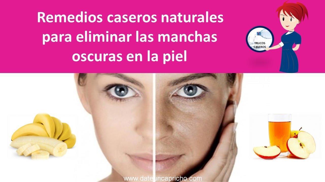 Photo of Remedios caseros naturales para eliminar las manchas oscuras en la piel