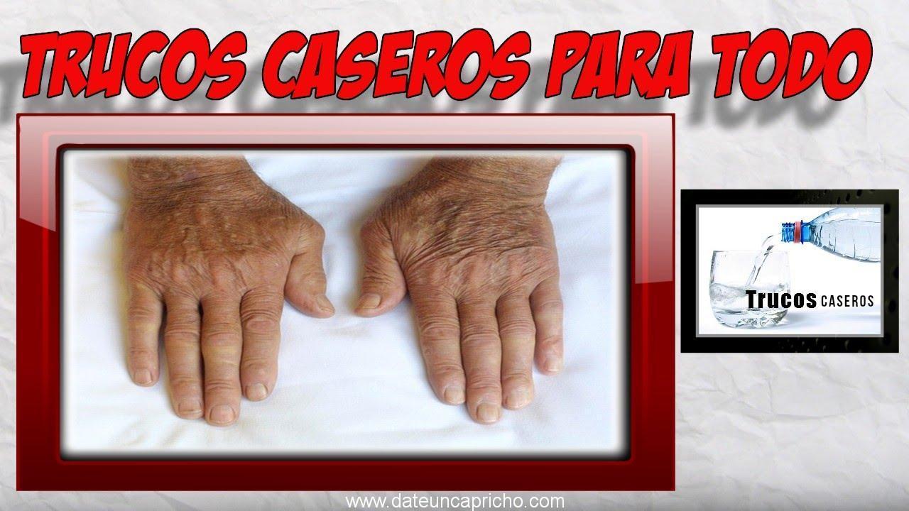 Remedios naturales para aliviar el dolor de artritis en las manos.