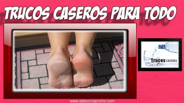 Remedios naturales para pies resecos y agrietados – Como tratar los talones secos y agrietados