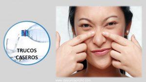 Como reducir los poros abiertos y dilatados – Remedios naturales para los puntos negros.
